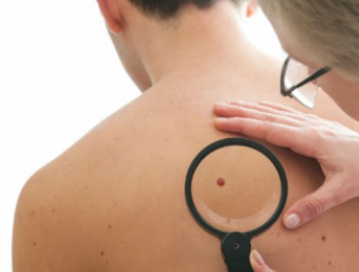 Предраковые заболевания кожи и профилактика рака кожи