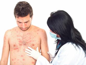 Наиболее распространенные причины высыпаний на коже