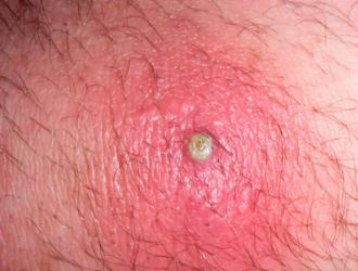Гнойные заболевания кожи