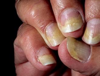 Заболевания внутренних органов и ногти