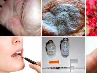 Наиболее распространенные аллергены