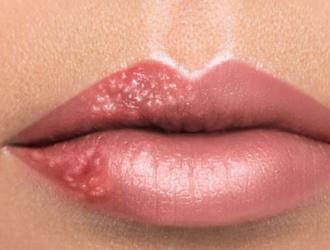 Высыпания на губах