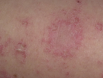 Монетовидный дерматит