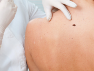 General skin cancer information