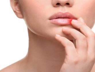 Другие болезни губ