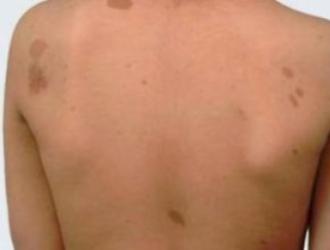 Dark spots on the skin