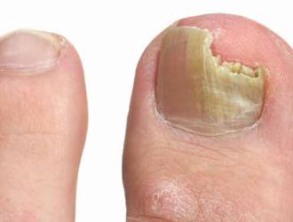 Инфекционные заболевания ногтей