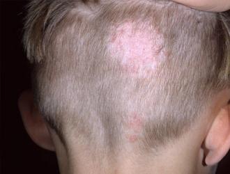 Грибок кожи головы