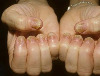 Заболевания кожи и ногти