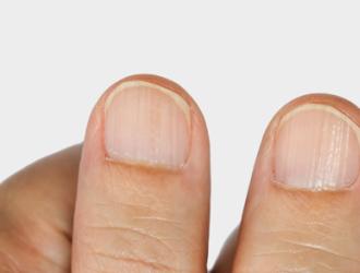 Симптомы заболеваний ногтей