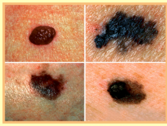 Skin cancer types (melanoma and a non melanoma skin cancer)