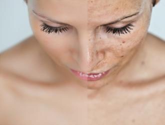 Postinflammatory hyperpigmentation