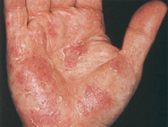 Skin fungus
