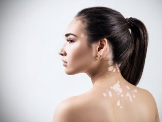 Уход за кожей при витилиго