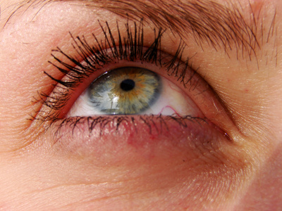 Redness of the skin around the eyes