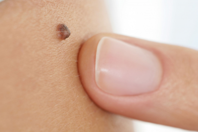Melanoma Skin Cancer Types Diagnosis Treatment Symptoms What Are Signs